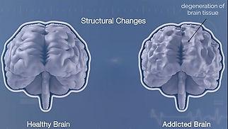 structural-brain-changes-front (1) (1).j