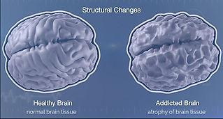 structural-brain-changes-top (1).jpg