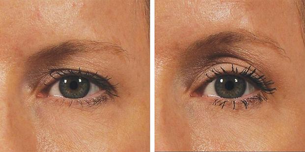 ultherapy eyes.jpg