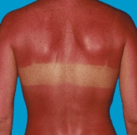 Celtic Tiger Holidays in Sun Blamed for Surge in Skin Cancer
