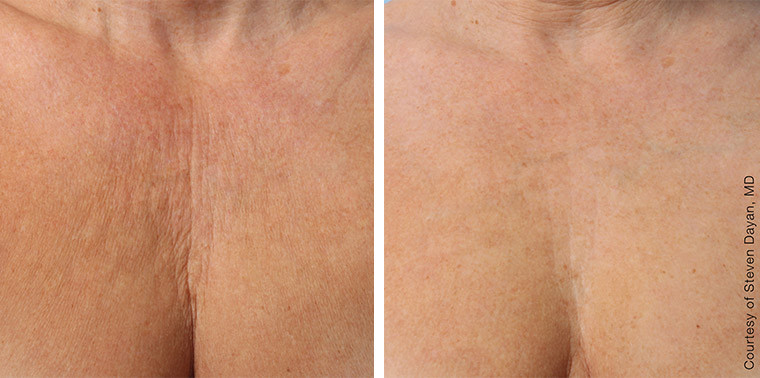 Ultherapy treatment on chest