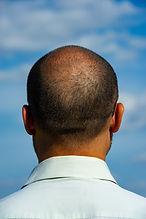 Balding man. Hair Transplant Surgery.jpg