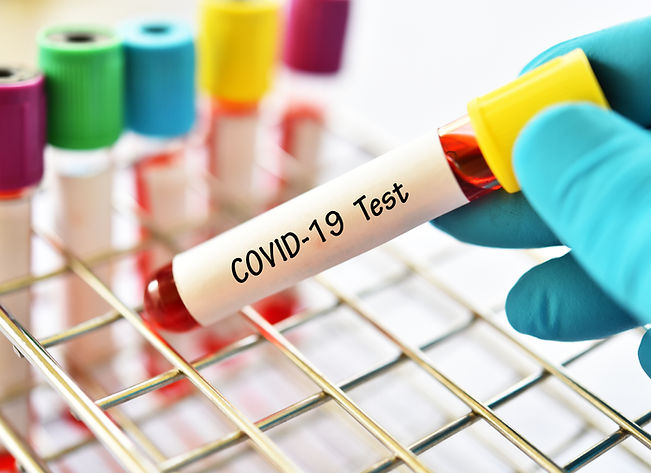 Test tube with blood sample for COVID-19