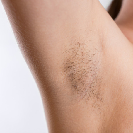 Hair Removal: A brief history!