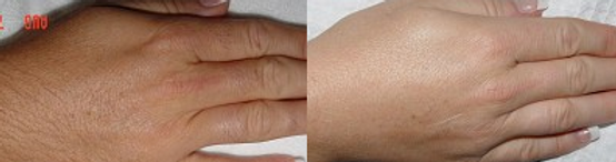 IPL / LASER HAIR REMOVAL before And After The Skin Clinic G 11 Islamabad