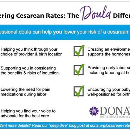 The Doula Magic: Lowering Cesarean Rates