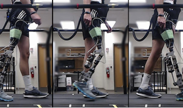 Helping Amputees Walk Within Minutes Using Computer Algorithms