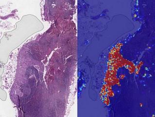 Inteligência artificial do Google detecta câncer de mama com 99% de precisão