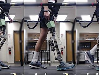 Prótese com inteligência artificial ajuda paciente a andar mais rápido