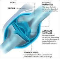 Arthrofast restores synovial fluid