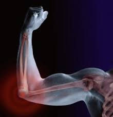 Arthrofast strengthens the muscular skeletal system