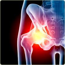 Arthrofast relieves inflammation in the hips