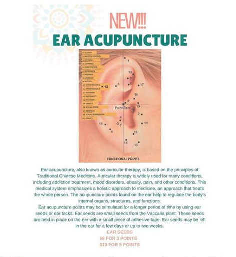 New Service! Ear Acupuncture!