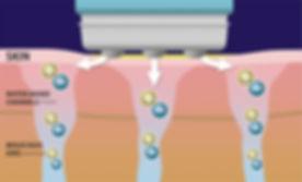 water-channel.jpg