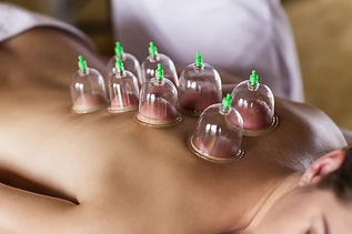 The_Benefits_of_Cupping_Therapy_9ec4e618