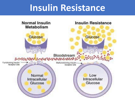 Insulin Resistance - A Deep Dive