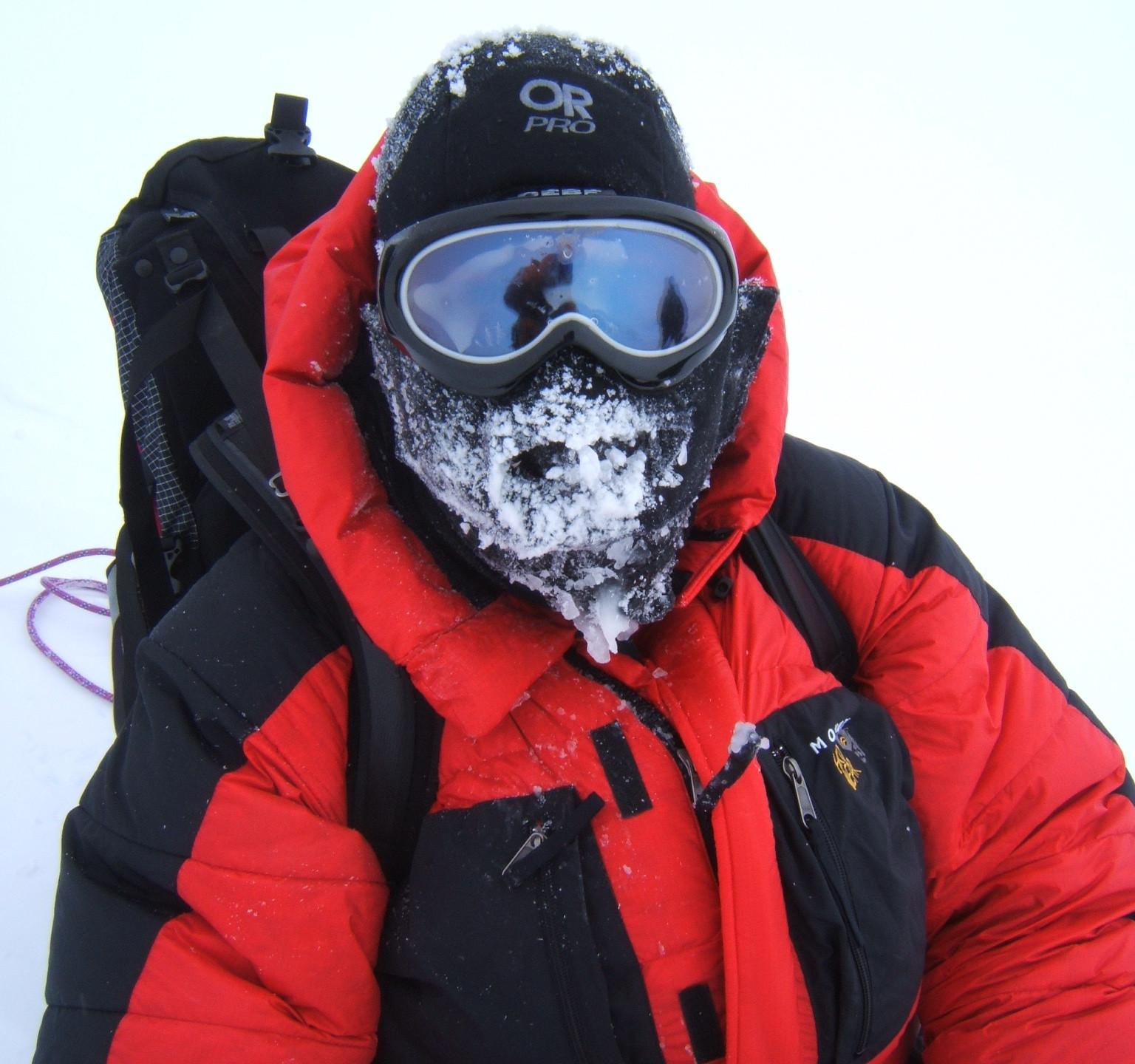 Frozen face at minus 40