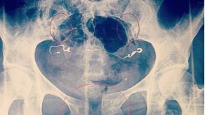 סימפיזיוליזיס וכאבי אגן בהריון