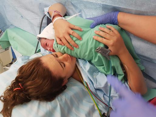 הכנה לקראת לידה קיסרית