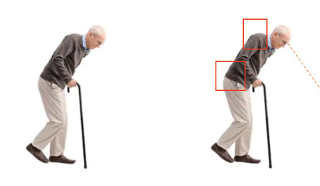 Senior Tips: Using a Cane Correctly
