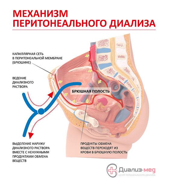 Механизм перитонеального диализа
