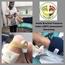 Ankle Brachial Pressure Index (ABPI) Ass