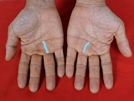 palmistry sunline and effects