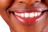 um-sorriso-saudável-9395340.jpg