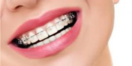 Aparelho dentário na vila Mariana