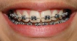 Aparelho dentário na vila Prudente