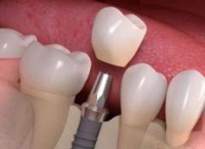 implante-dentário-com-carga-imediata.jpg