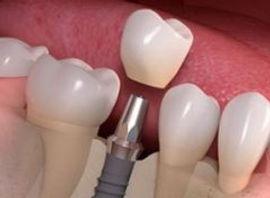 Implante dentário Santo André
