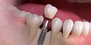 Implante-Unitário-848x530.jpg