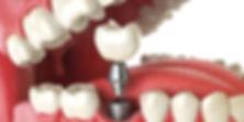 Implante dentário Mooca