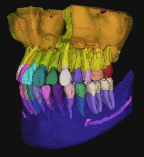 Diagnocat, Intelligence Artificielle et Imagerie dentaire