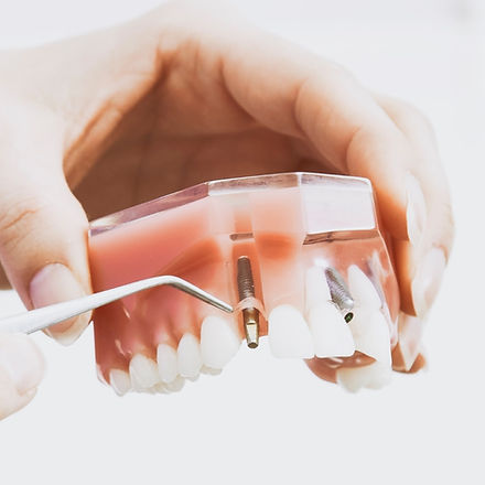 Dental%20implants_edited.jpg