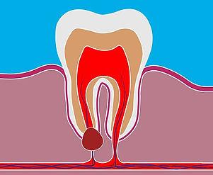 Dental-Cyst-3D-Rendering.jpg