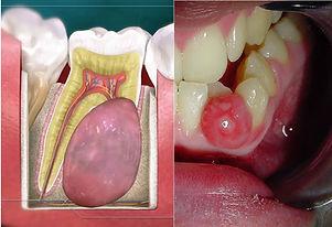 Lesion joint.jpg