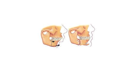orthognathic surgery 2.jpg