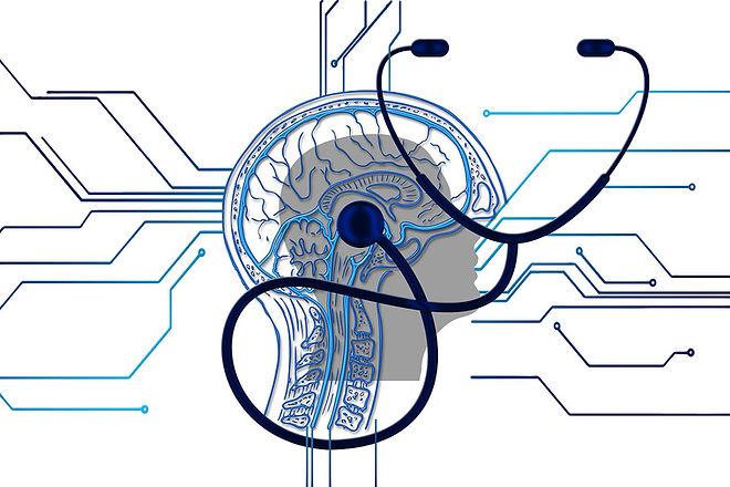 brain-4381325_1280.jpg