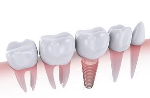 Dental%20Implant_edited.jpg