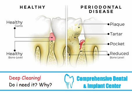 Regular Cleaning, Deep Cleaning, Periodontal Disease. Which one is for me?