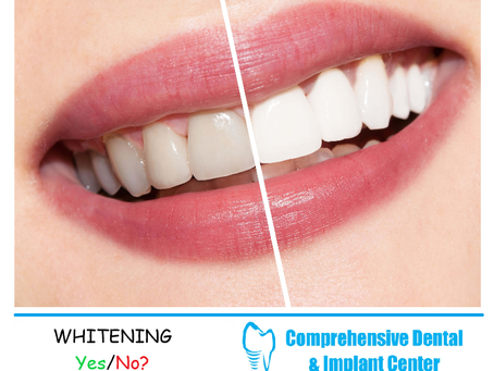 Teeth Whitening! Yes or No? Is it for you?