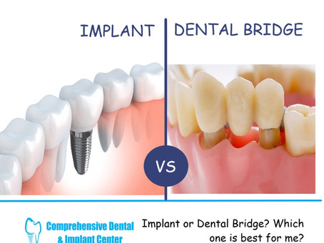 Implant vs. Bridge