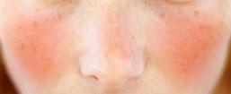 Rosacea: Understanding skin redness.