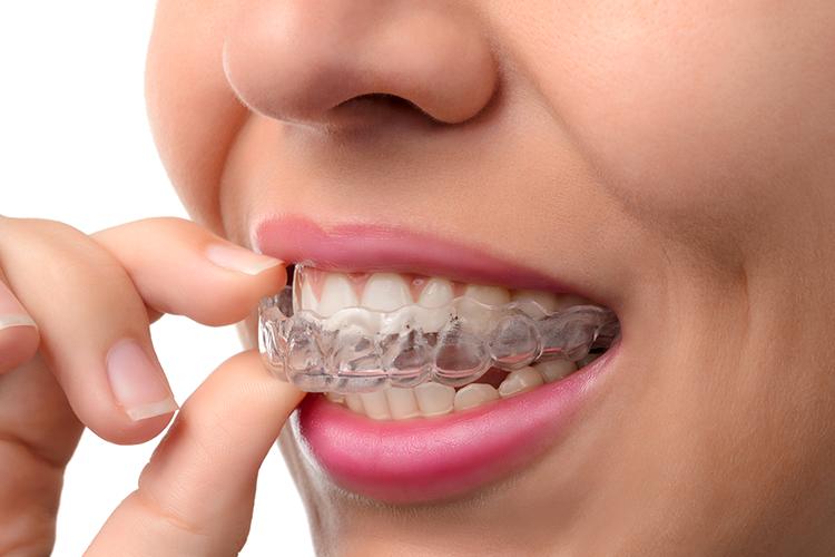 ortodontia-3