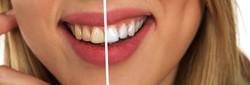 dentistica clareamento alexandre comparo