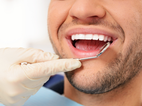 5 reasons you need professional teeth cleaning
