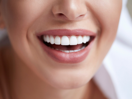 What is the Enlighten teeth whitening system?