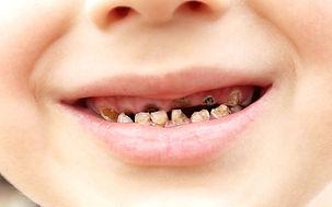 No More Cavities Non-Profit Corporation